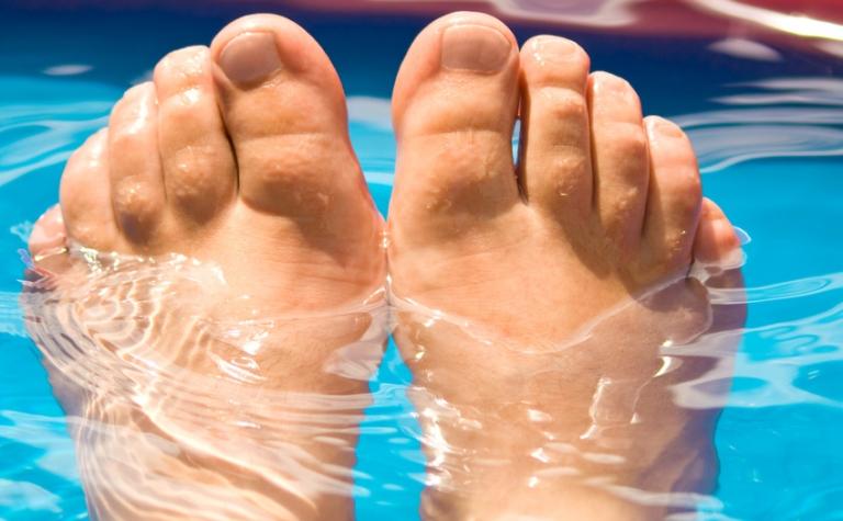 Ongewenste bewoners: voetschimmel en schimmelnagels