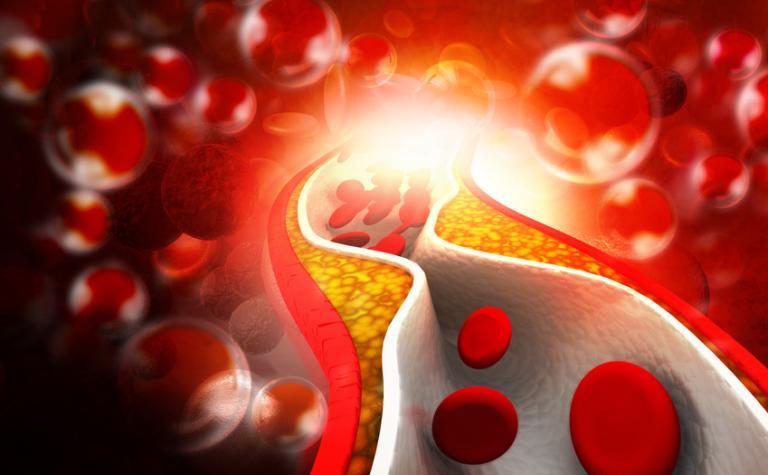 Cholesterol, van onmisbare stof tot kwaaie pier