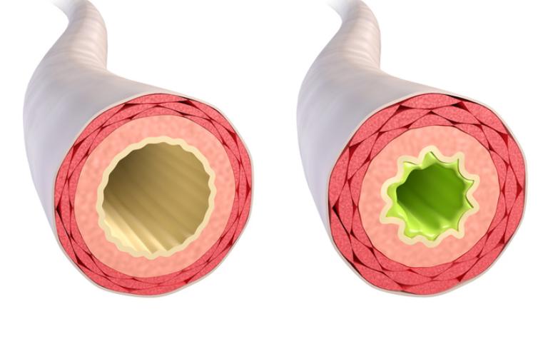 Acute en chronische bronchitis; de natuurlijke aanpak
