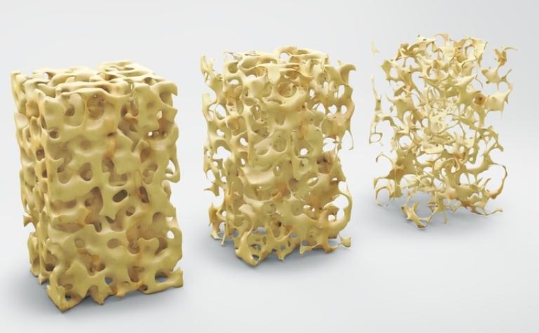 Osteoporose, de stille epidemie